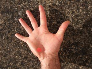 éminence hypothénar main droite